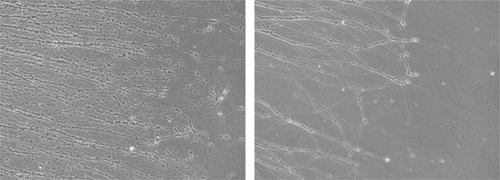 Axons in culture degenerate when exposed to Vincristine